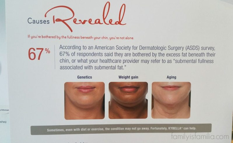 kybella-injections-double-chin-getting-done-orange-county-mom-blogger