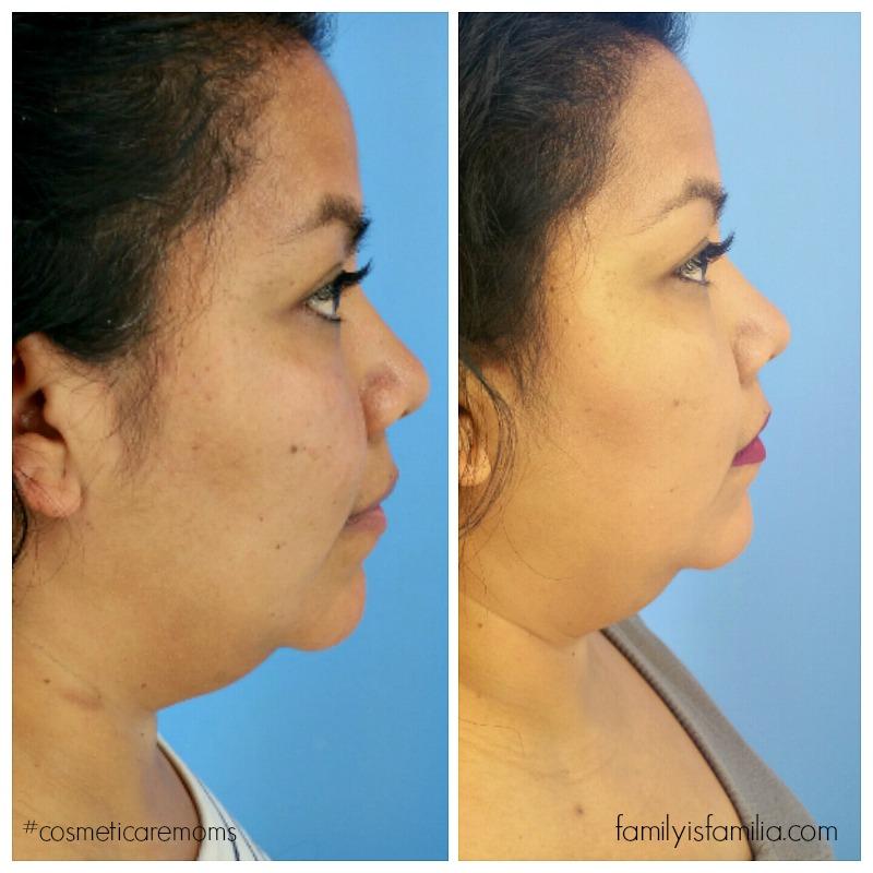 truSculpt: The Non-Invasive Fat Reduction for Your Chin! #CosmetiCareMoms