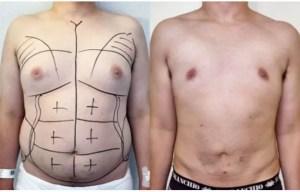 Ginecomastia cirurgia