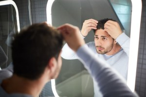 hair loss min