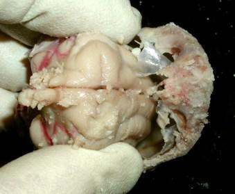 Slide brain out of calvarium