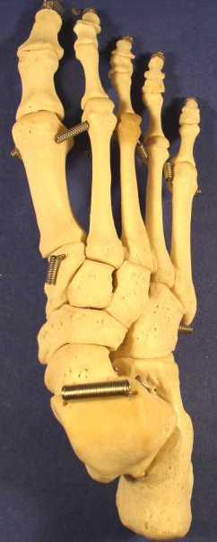 foot_superior_PB060026