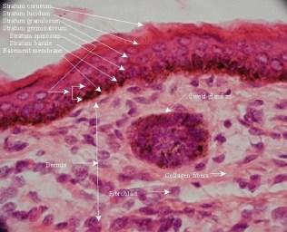 Epidermis thin skin