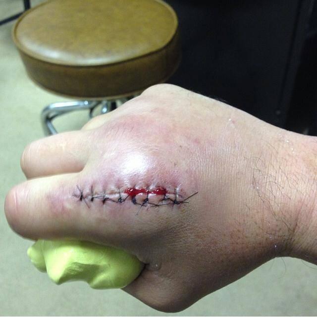 Ian McCall hand surgery