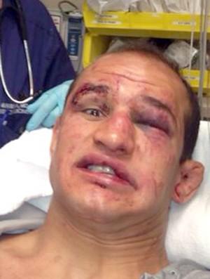 Junior Dos Santos after UFC 166