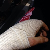 Cole Millers broken left hand from UFN 35