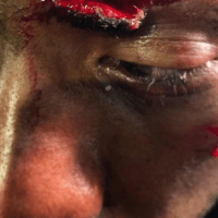 Gruesome cut on Ron Stallings, gifted from Uriah Hall