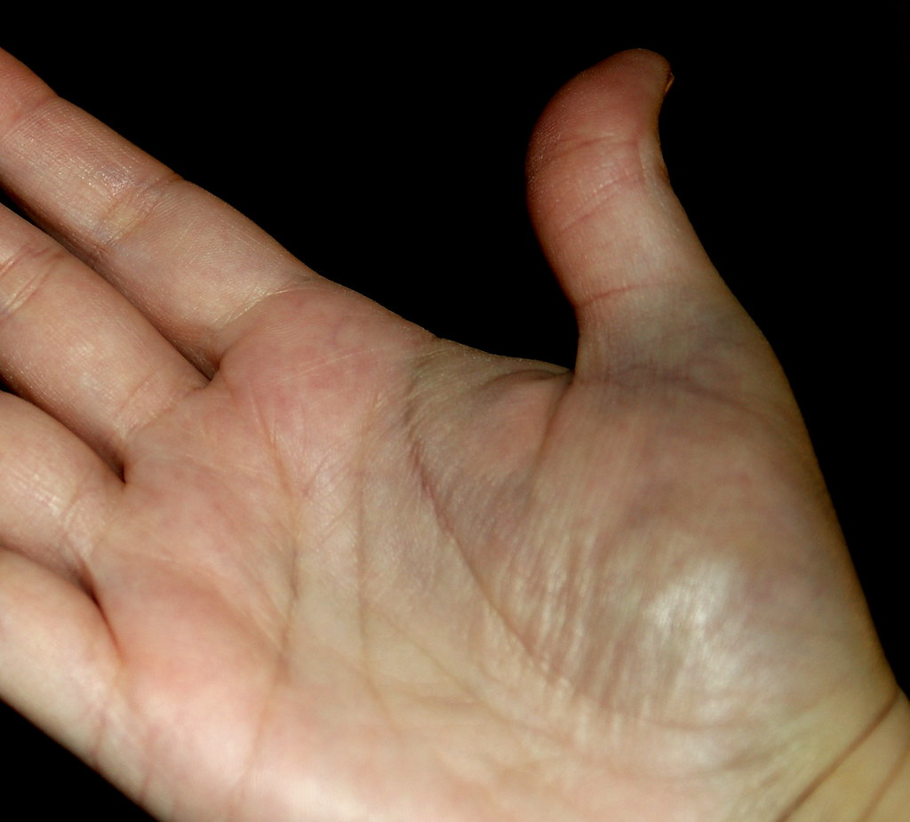 Bruised Palm Of Hand Near Thumb