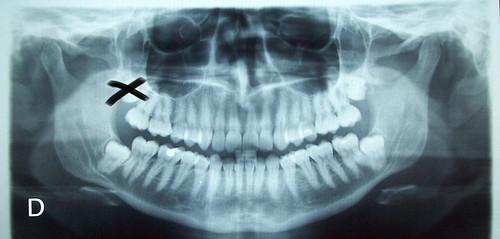 ortopantomografÃa2