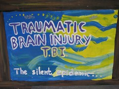 TRAUMATIC BRAIN INJURY (T.B.I.)