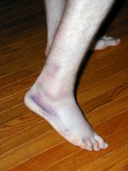 Sprained Ankle 002