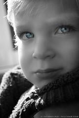 Little boy, low color