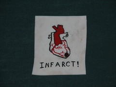Shrinky-dink: Myocardial infarction
