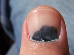 Busted Thumb
