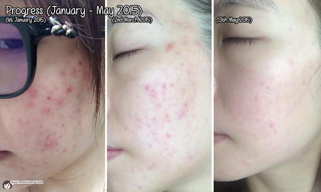 Clifford Clinic Left Face Progress Jan-May 2015