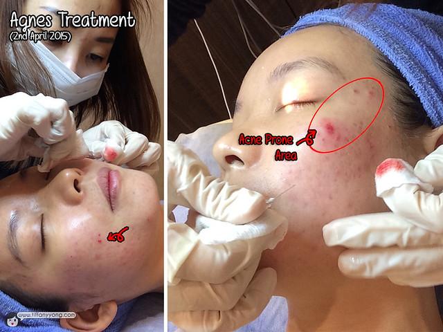 Agnes Treatment 2b