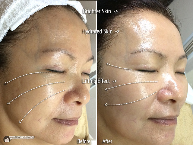 Skin Science Exclusive Treatment Results