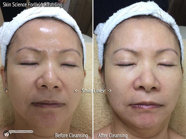 Skin Science Forlled Cleansing