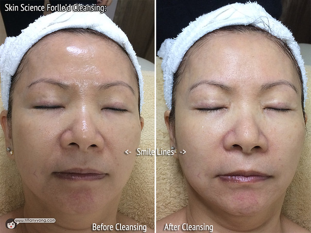 Skin Science Forlled Cleansing