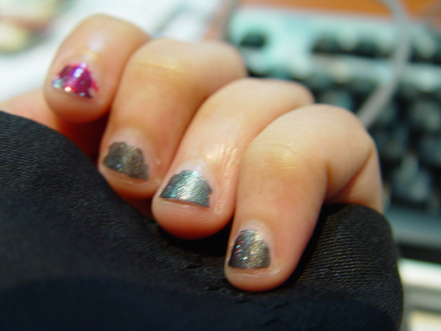 girls with ugly fingernails