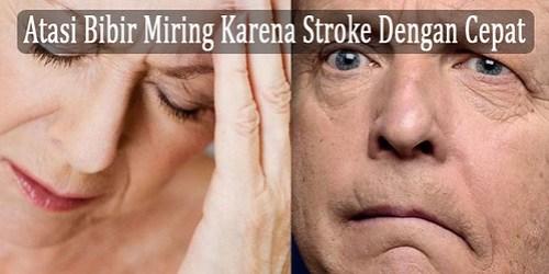 Pengobatan Bibir Miring Karena Stroke