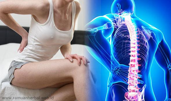 Obat Herbal Sakit Pinggang Paling Laris dan Murah
