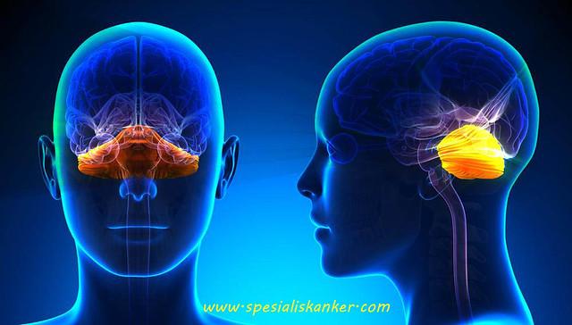 Kanker Cerebellum
