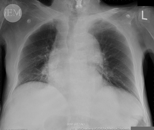 469 - wide mediastinum - chest X-ray