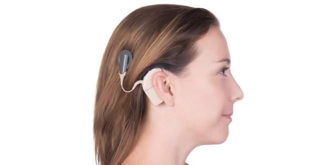 implants-cochléaires