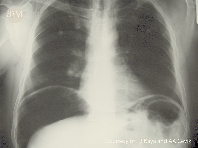 51.1 - Perforated viscus X-ray
