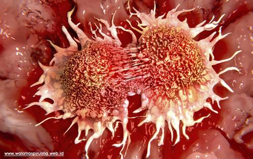 Luar Biasa! Ternyata Spirulina Juga Mampu Mengatasi Kanker