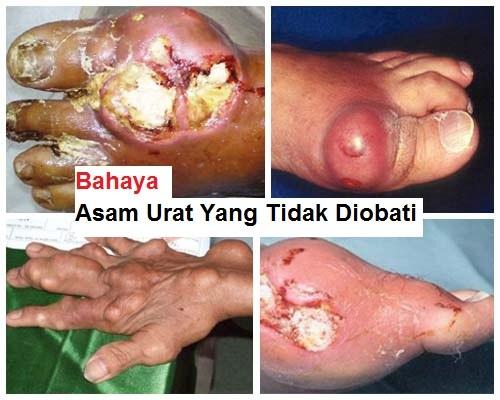 jari tangan bengkak karena asam urat