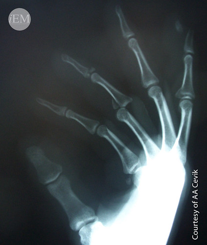 600 - Phalangeal dislocation and fracture