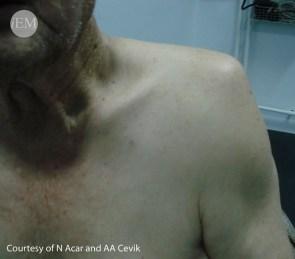 603.1 - left shoulder dislocation - loss of normal round shoulder appearence