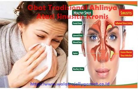 Obat Sinusitis Menahun Tradisional