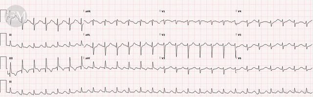 41.2 - ECG for suspected pulmonary embolus