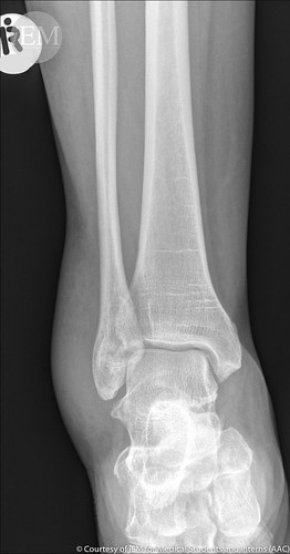 149.1 - ankle fx1 - fibula - lateral malleol fracture