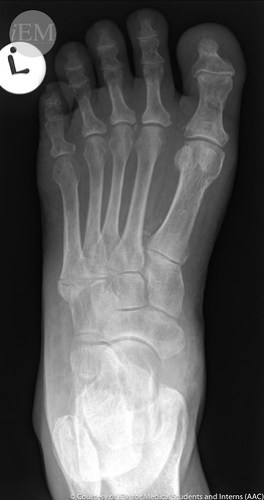 120.1 - 5th Metatarsal base fx 1 pseudo jones