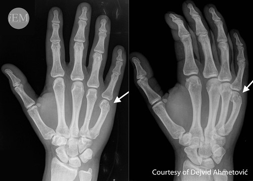 Figure 4 - Fracture of the neck of the IV. or V. metacarpal