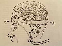 Brain electrodes by laimagendelmundo on Flickr