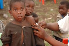 Fighting the killer measles