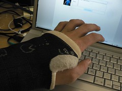 my hand in a cast