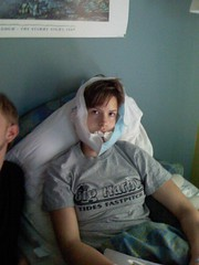 Natalie after her jaw surgery
