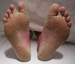 Athlete Foot