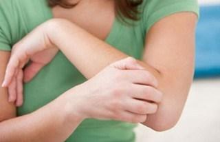 Bahaya Prurigo Atau Darah Manis Bagi Jaringan Kulit