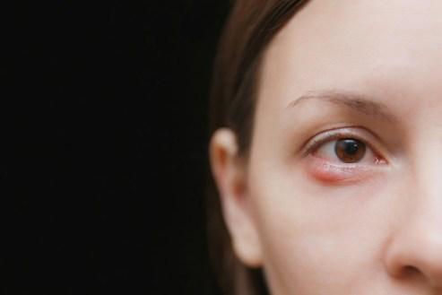 Cara Menghilangkan Benjolan Di Kelopak Mata Paling Cepat