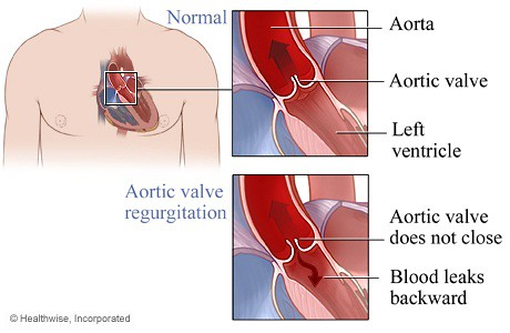 Obat Katup Jantung Bocor Tradisional Tanpa Operasi