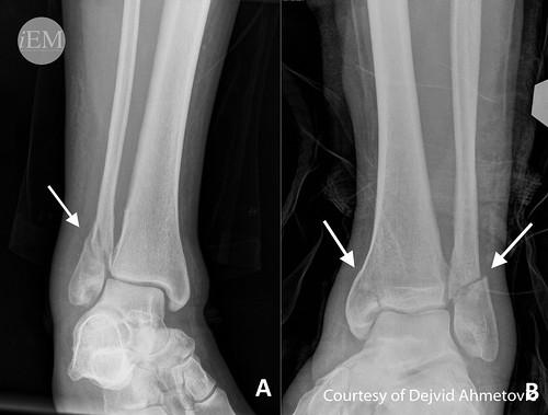 99 - Figure 18 - Fracture of fibulaand Fracture of medial malleolus