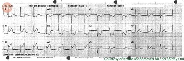 Acute Coronary Syndrome (ACS) - International Emergency Medicine Education Project