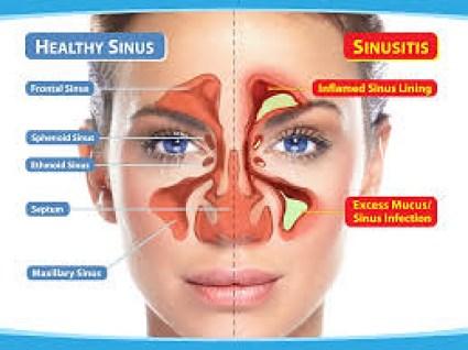 Obat Sinusitis di Apotik K24 Resep Dokter